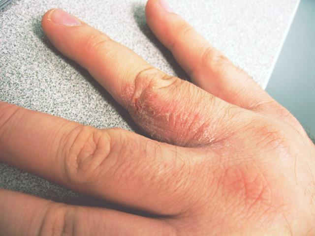 Aromatherapy for Psoriasis & Eczema 2